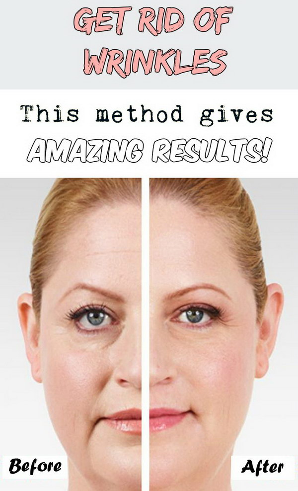 How to Get rid of wrinkles in Minutes.