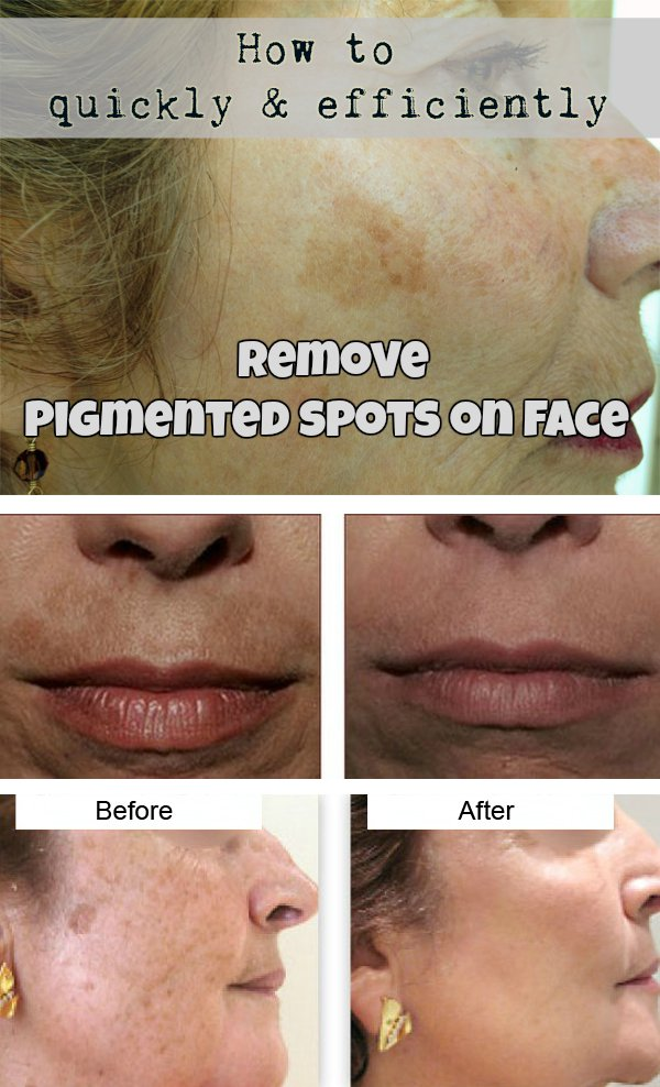 How To Quickly And Efficiently Remove Pigmented Spots On Face?
