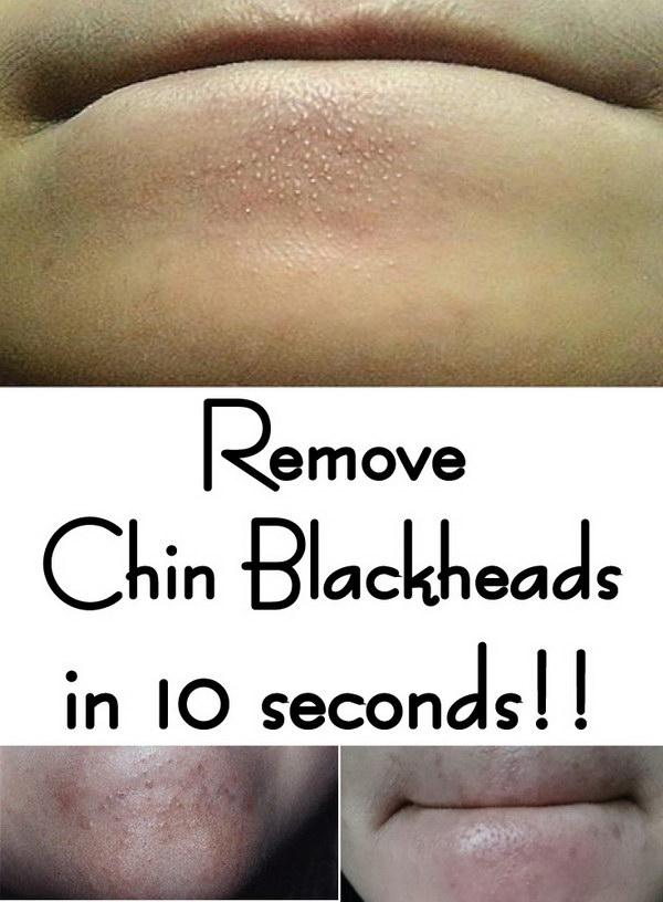 Remove Chin Blackheads in 10 seconds.