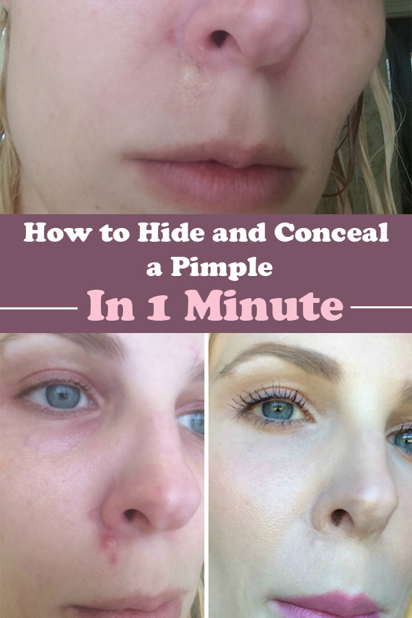 How To Hide And Conceal A Pimple In 1 Minute.