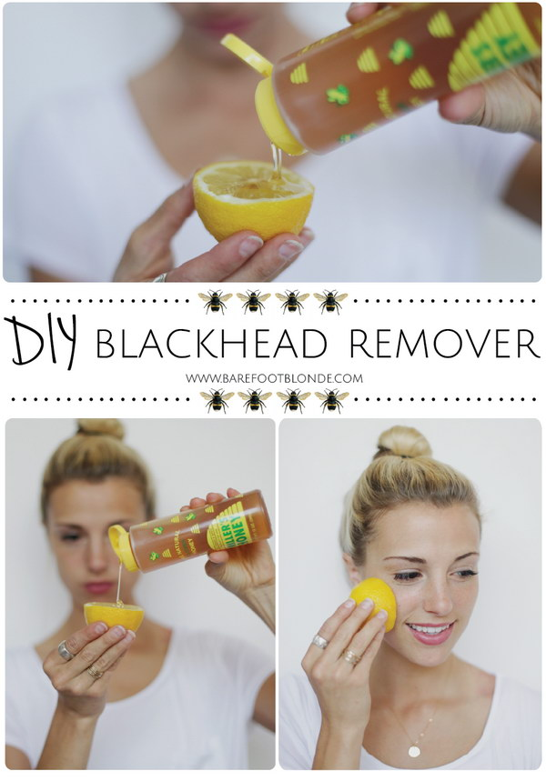 DIY Blackhead Remover Using Honey, Lemon and Sugar.