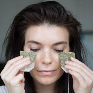15 Ways to Get Rid of Dark Circles Under Your Eyes