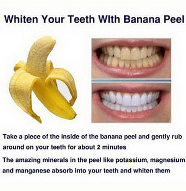 12 Best Natural Ways For White Glowing Teeth