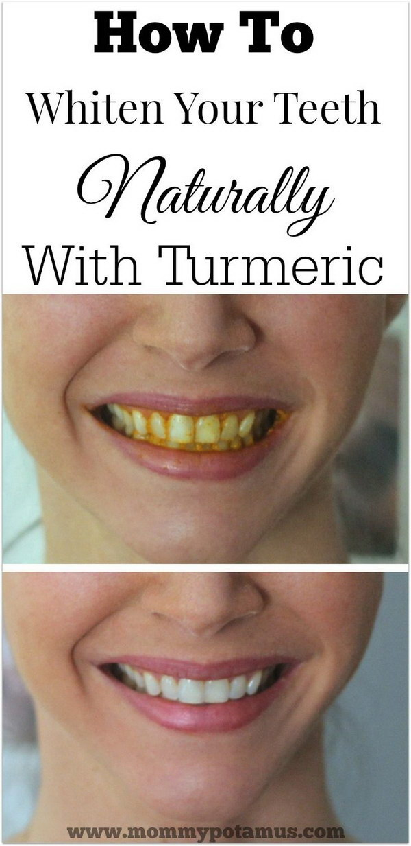 How To Whiten Teeth Naturally With Turmeric.